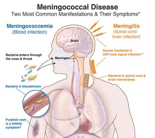The diagram shows the two most common manifestations of meningococcal diseases and its symptoms. Picture: SUPPLIED